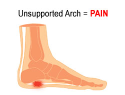 Plantar Fascia Pain Relief is Here