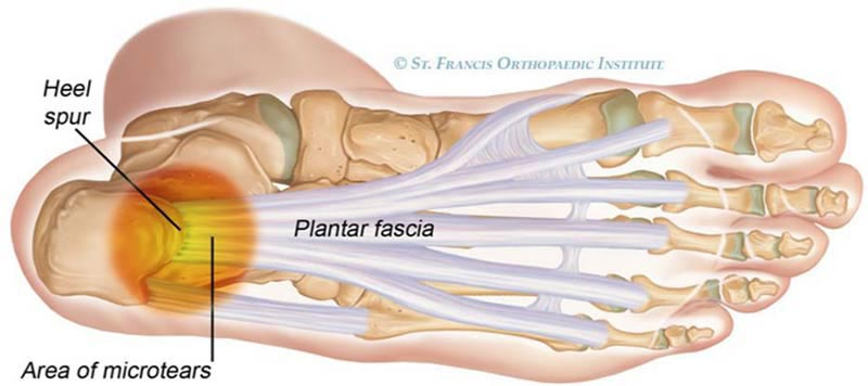 Relief from Plantar Fascitiis Begins Here